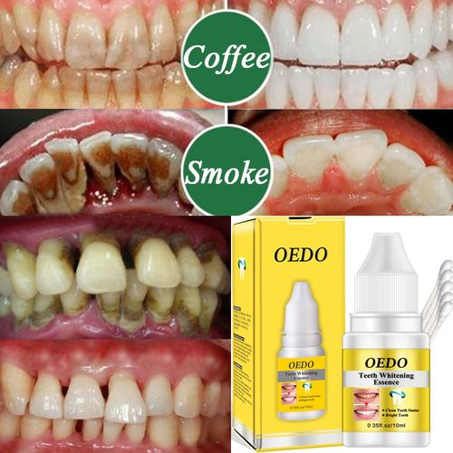 1 Bottle 10ml Magic Teeth Whitening Essence Liquid Teeth Whitening